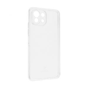 Maska Teracell Giulietta za Xiaomi Mi 11 Lite transparent